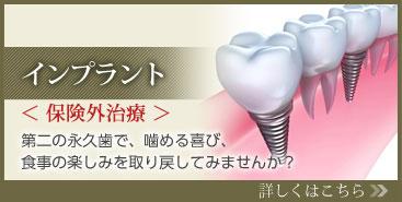 インプラント 第二の永久歯で、噛める喜び、 食事の楽しみを取り戻してみませんか? 詳しくはこちら